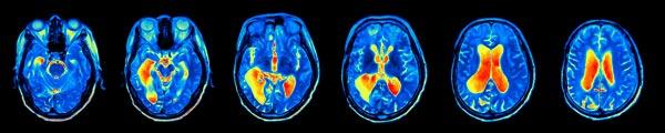 Imágenes de resonancia magnética funcional (fMRI)